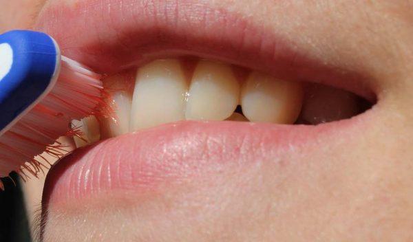 Les dents et les huiles essentielles (HE)